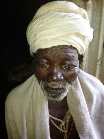 Trachoma-Ethiopia-Wolde-Firew